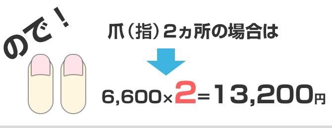 爪2ヵ所13200円