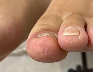 巻き爪例 18