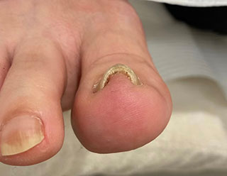 巻き爪例 20