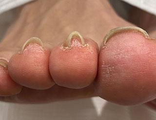 巻き爪例 21